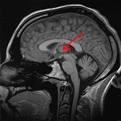 How to make brainwave entrainment & Binaural beats – easy